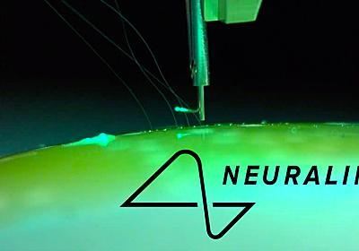 【更新中】ついに始まる、脳直結インターフェースの時代。イーロン・マスクのAI危機対策として   ギズモード・ジャパン