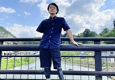 「29歳独身手足なし」電車事故で左手1本に…障害者YouTuberが絶望超えて見えたもの「五体満足だと、逆にないものが目に付く」   ORICON NEWS
