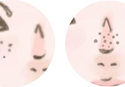 頬のたるみ毛穴がひどくなってきた、どうしたら目立たなくできますか?