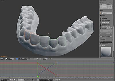 費用1万円以下!? 3Dプリンターで歯列矯正した理系大学生の話 | BUSINESS INSIDER JAPAN