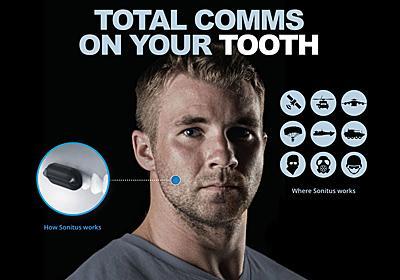 歯に装着する謎の通話デバイス、ペンタゴンから多額の資金調達をゲット | ギズモード・ジャパン