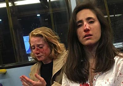 ロンドンで暴行受けた女性カップルが当時の写真を公開「暴力が常態化してしまっている」 | ハフポスト