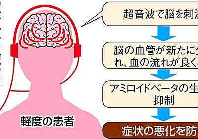 アルツハイマー病を超音波で治療 東北大が世界初の治験へ - 産経ニュース