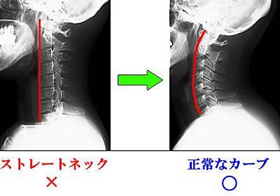 肩こり改善マニュアル頑固な肩コリを根本から解消するためしてガッテンより