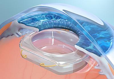 目の中にレンズを埋め込みAR 臨床試験も開始 | Mogura VR - 国内外のVR最新情報