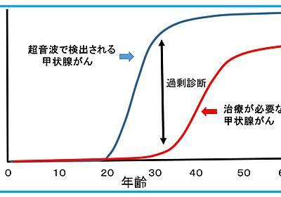 10分でわかる甲状腺がんの自然史と過剰診断 - 大阪大学大学院医学系研究科 甲状腺腫瘍研究チーム