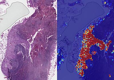 GoogleのAIは転移性の乳がんを99%の精度で検知することが可能 - GIGAZINE