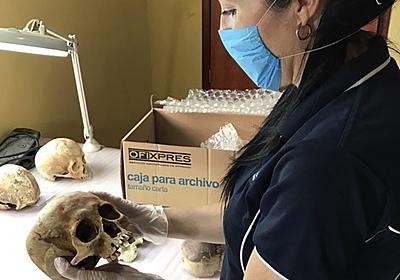 死体は1年以上たっても動く、豪研究者が「死体農場」で撮影し証明 写真2枚 国際ニュース:AFPBB News