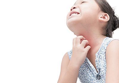 アトピー性皮膚炎のスキンケア、洗う? 洗わない?