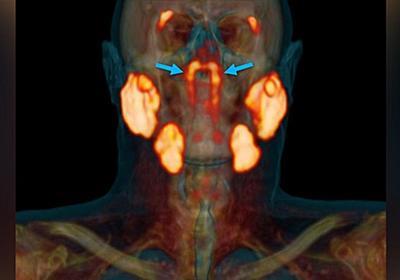 CNN.co.jp : 人の喉に未知の臓器を発見、オランダ研究チーム発表
