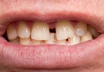 大人になってからの「歯列矯正」にかかる費用と期間のホントのところ