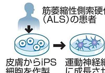 ALSの病状、進行停止 「世界初」iPS使い既存薬探す | 共同通信