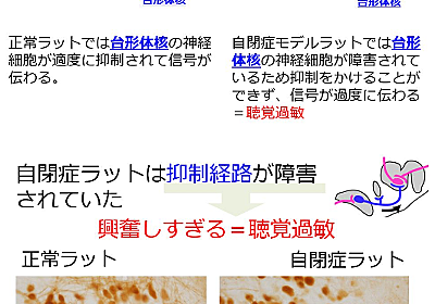 【プレスリリース】世界初 自閉症と聴覚過敏の併発メカニズムの解明及び、自閉症を見分ける新たな診断方法 | 日本の研究.com
