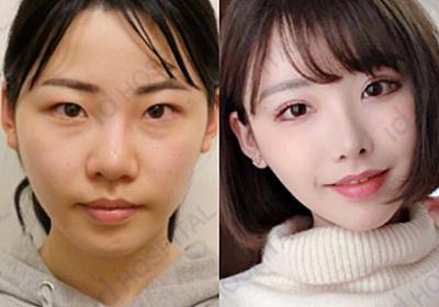 【韓国美容整形】ID美容外科の日本人モニターモデル♥あずささんのReal Story | 韓国整形通訳サポートBiJOO(ビジュー)