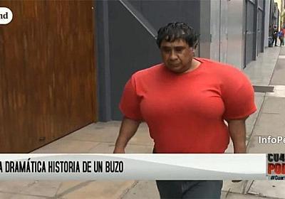 体が風船のようにパンパンに膨れてしまったダイバー。減圧症(潜水症)の恐ろしさ(ペルー) : カラパイア