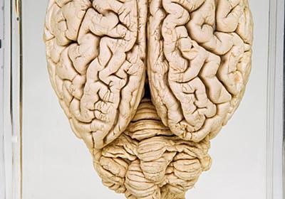 死んだブタの脳を回復、脳死の定義ゆるがす研究 | ナショナルジオグラフィック日本版サイト