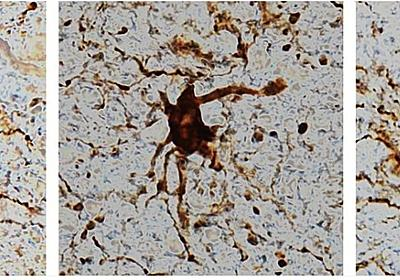 「脳細胞のなかには、死後に活性化するものもある」研究結果で明らかに   ギズモード・ジャパン