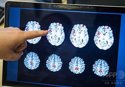 「うそをつくほど平気に」、不正直に脳が適応 研究 写真1枚 国際ニュース:AFPBB News