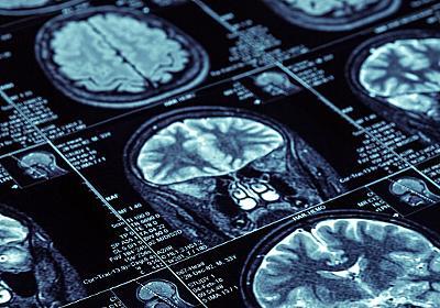 全身転移のがんが消えた…常識破り「副作用のない抗がん剤」誕生秘話(奥野 修司) | 現代ビジネス | 講談社(1/4)