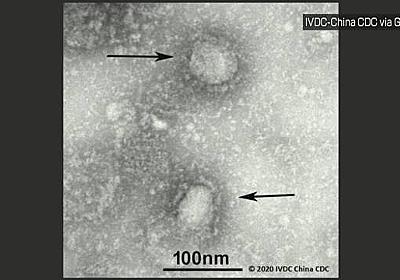 新型ウイルス 福岡市で60代男性の感染確認 九州で初 | NHKニュース