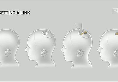 イーロン・マスク「頭のFitbit」こと脳埋込みAIチップ「Link」発表。自動手術ロボV2も - Engadget 日本版