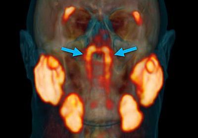 「未知の臓器」が人間の喉の奥から発見される - GIGAZINE