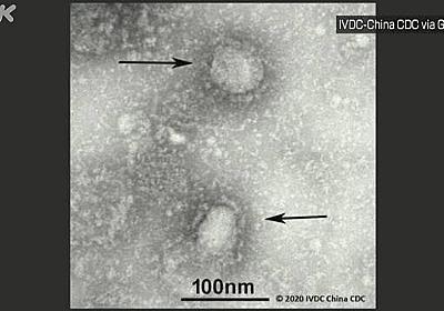 新型コロナウイルス 重症者 過去最多の1144人に 厚労省 | 新型コロナウイルス | NHKニュース