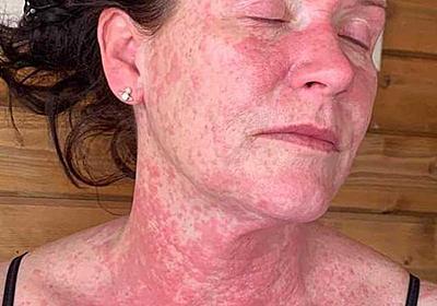 【説得用】コロナワクチン 肌への副作用 - prettyworldのブログ