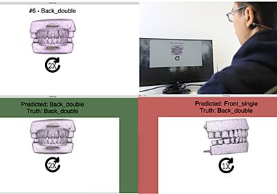歯でジェスチャー入力 機械学習で13パターンを区別 コーネル大など「TeethTap」開発:Innovative Tech(1/2 ページ) - ITmedia NEWS