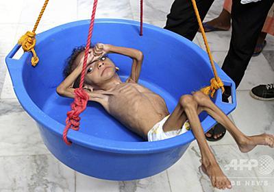 内戦続くイエメン、子ども500万人以上が飢餓に直面 写真6枚 国際ニュース:AFPBB News