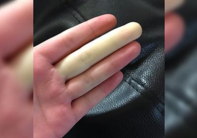 帰宅すると指が一本だけ真っ白に→もしかしたらこの現象かも「チーかまかと思った」「膠原病内科での受診を」 - Togetter