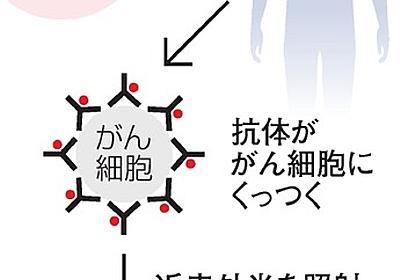 30人中4人のがん消える 光免疫療法、治験結果を公表:朝日新聞デジタル
