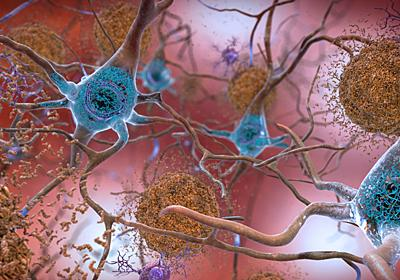 アルツハイマー病患者の脳内から、異常な形の鉄と銅が発見される   ギズモード・ジャパン