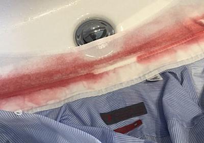 ワイシャツの襟に漂白剤をかけたら日焼け止めのせいでこのありさま「パッと見事件」 - Togetter