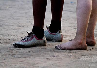 モザンビークでまた「アルビノ狩り」 17歳少年、脳まで奪われる  写真1枚 国際ニュース:AFPBB News
