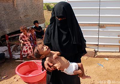 内戦のイエメン、過去数十年で世界最悪の飢餓の恐れ 国連総長 写真3枚 国際ニュース:AFPBB News
