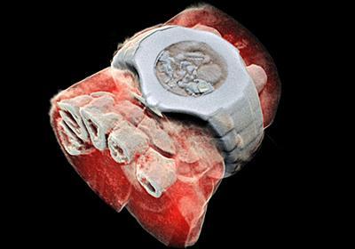 人類初となる「フルカラー3DのX線写真」がCERNの技術で実現 - GIGAZINE