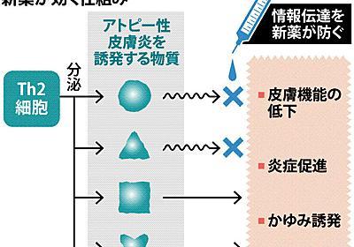 アトピー性皮膚炎:新薬 注射で誘発物質を遮断 - 毎日新聞