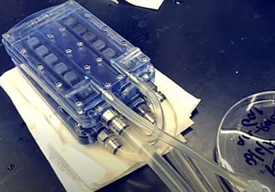「人工腎臓」の試作に成功!透析患者の生活の質を改善させる - ナゾロジー
