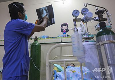 小児の原因不明の希少疾患、再び増加のおそれ 米CDC 写真1枚 国際ニュース:AFPBB News