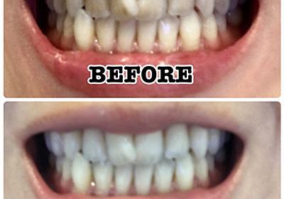 1か月!体当たりで実証しました!おうちで出来る!歯を白くする方法とアイテム3つ! | MAQUIA ONLINE(マキアオンライン)