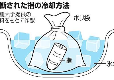 指の切断 正しい冷却なら8時間まで再接着可能:朝日新聞デジタル