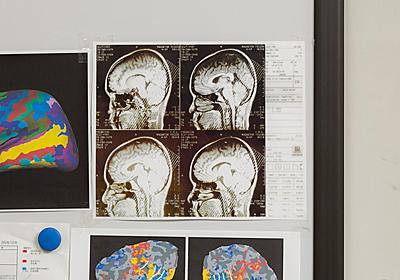 第4回 「分離脳」だから分かった感覚のつながりとは | ナショナルジオグラフィック日本版サイト