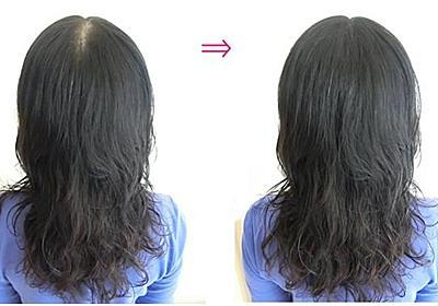 女性も薄毛が気になります!分け目を瞬時に目立たなくする方法とは? - 興味しんしん