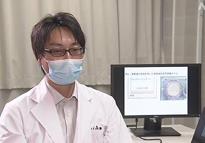 皮膚付着の新型コロナウイルス 感染力9時間続く 京都府立医大 | 新型コロナウイルス | NHKニュース