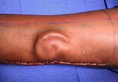 CNN.co.jp : 腕で耳を培養、事故で左耳失った米兵に移植手術