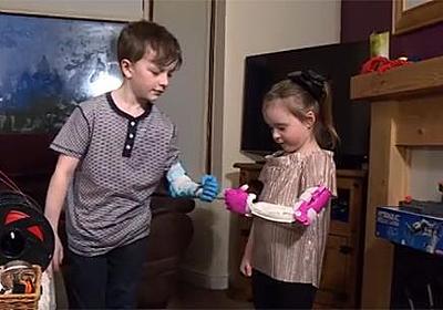 息子の為に3Dプリンタで義手を作ったお父さん。SNSで左手のない少女の存在を知り彼女の分も作ってあげる。 : カラパイア