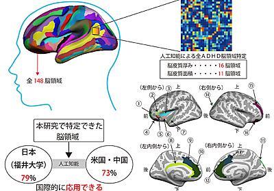 共同発表:ADHDの脳構造の特徴を人工知能により解明し、遺伝子多型の影響を発見