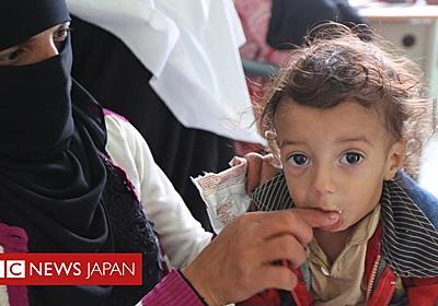 内戦続くイエメンの子供「520万人」飢餓に直面=国際NGO - BBCニュース