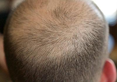新たに承認された皮膚炎治療薬に思わぬ発毛効果。全頭性脱毛症の少女の髪の毛が劇的に生える(米研究) : カラパイア